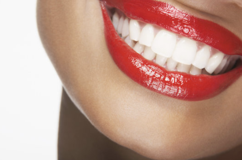 Teeth Whitening Sacramento